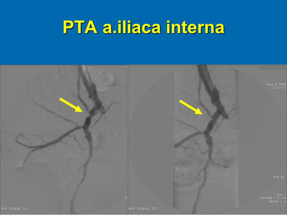 PTA a.iliaca interna