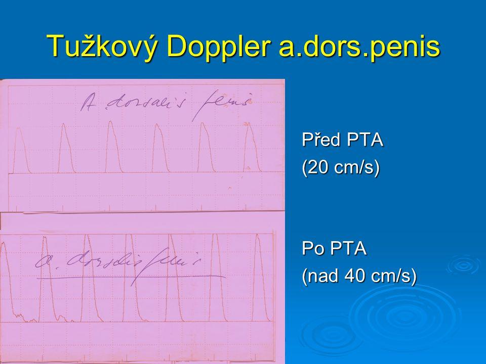 Tužkový Doppler a.dors.penis
