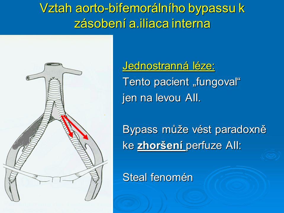 Vztah aorto-bifemorálního bypassu k zásobení a.iliaca interna