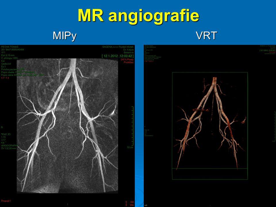 MR angiografie MIPy VRT