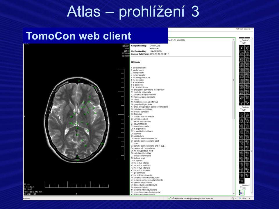 Atlas – prohlížení 3 TomoCon web client