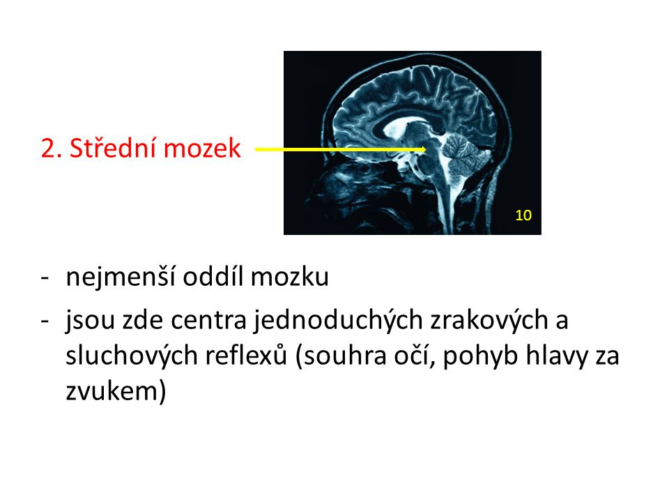 2. Střední mozek nejmenší oddíl mozku