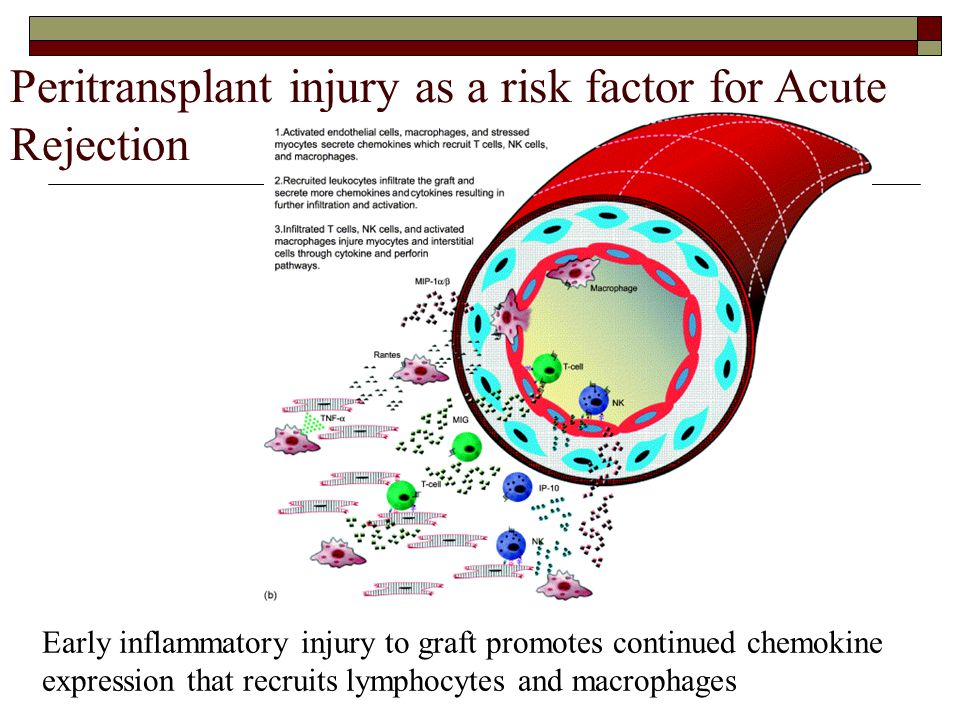 Peritransplant injury as a risk factor for Acute Rejection