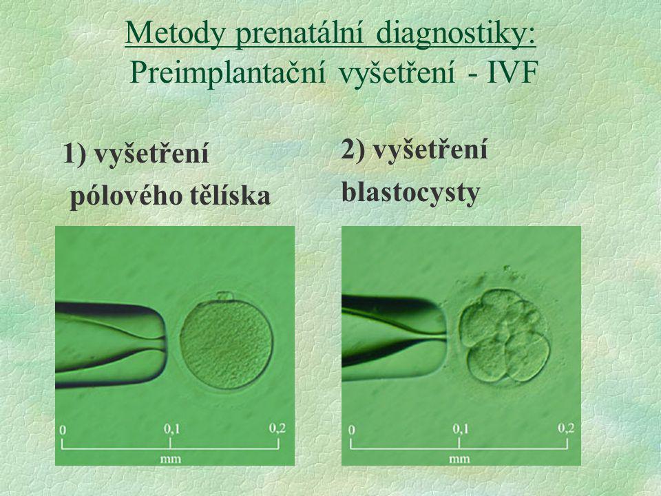 Metody prenatální diagnostiky: Preimplantační vyšetření - IVF