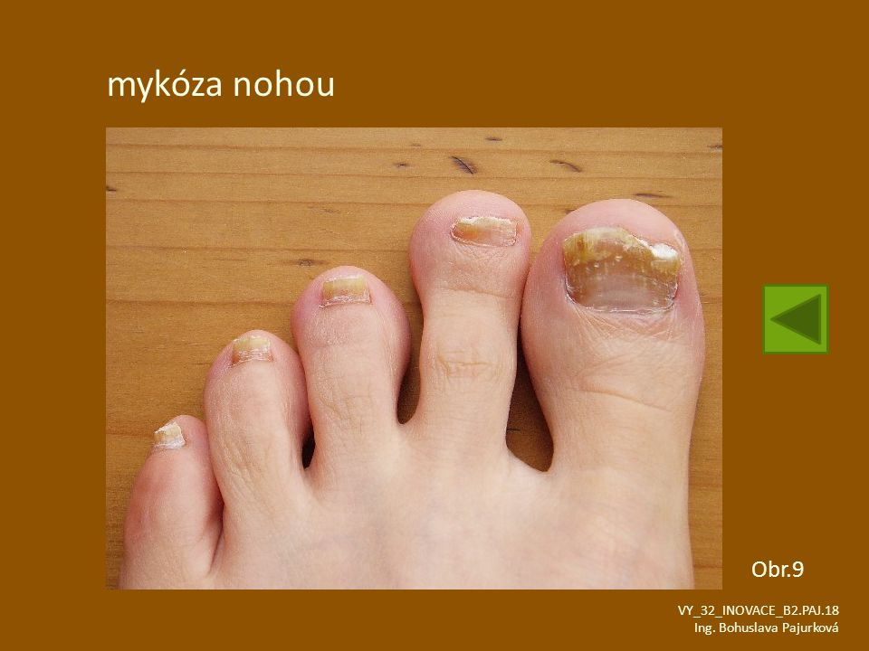 mykóza nohou Obr.9 VY_32_INOVACE_B2.PAJ.18 Ing. Bohuslava Pajurková