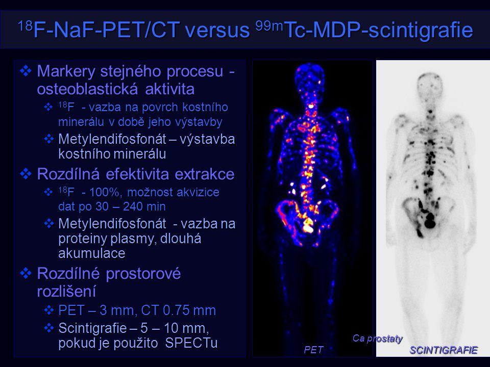 18F-NaF-PET/CT versus 99mTc-MDP-scintigrafie