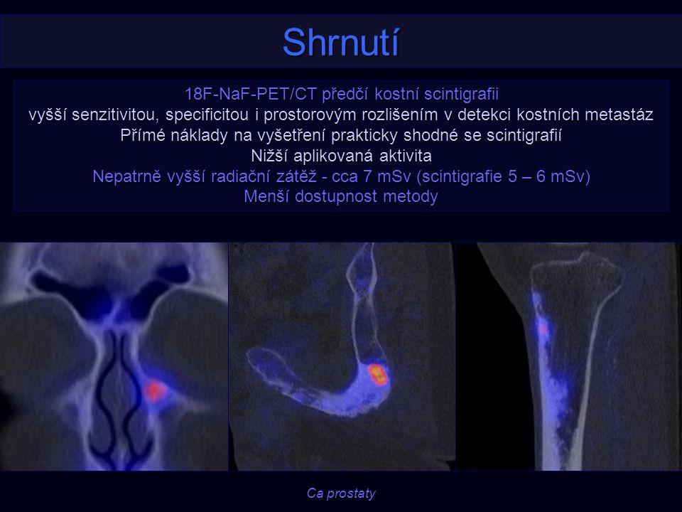 Shrnutí 18F-NaF-PET/CT předčí kostní scintigrafii