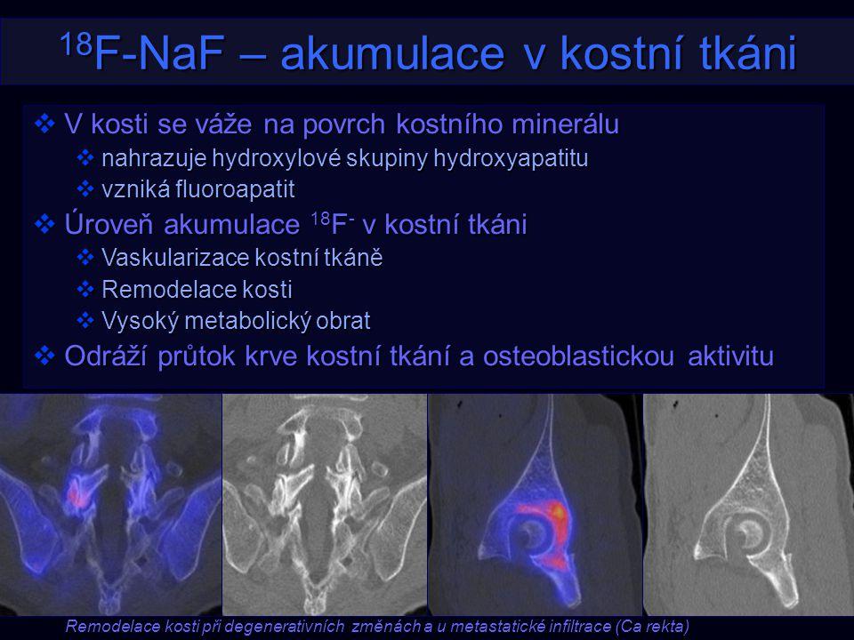 18F-NaF – akumulace v kostní tkáni