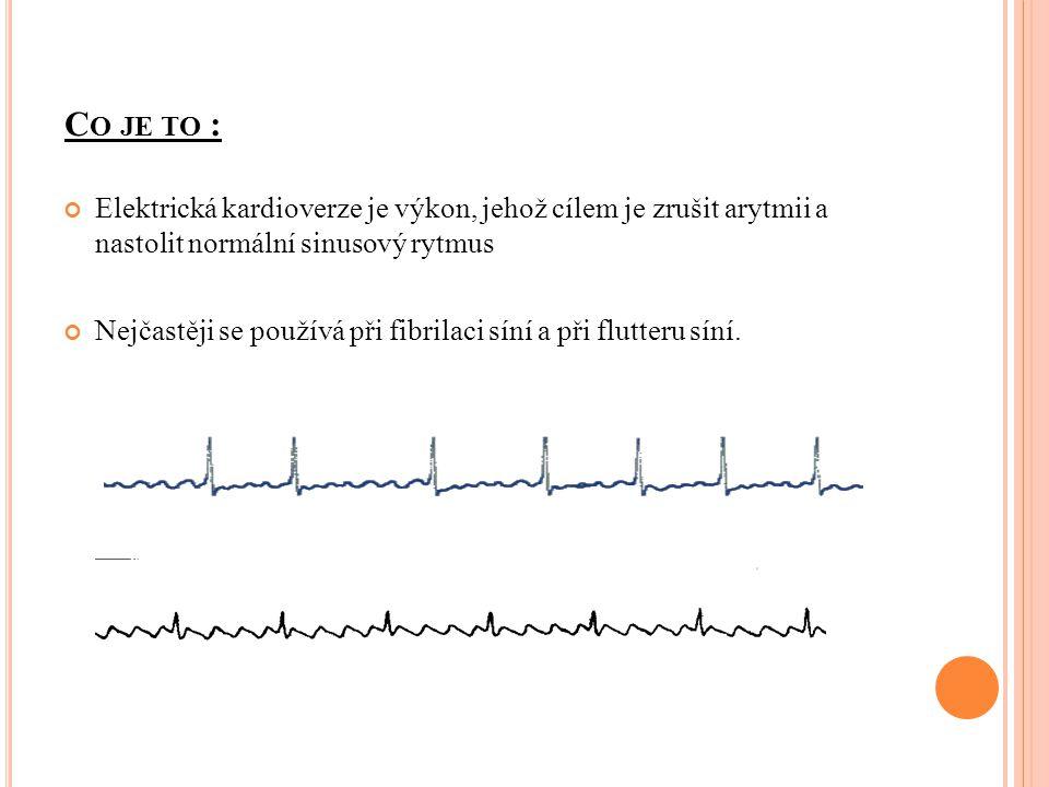 Nejčastěji se používá při fibrilaci síní a při flutteru síní.