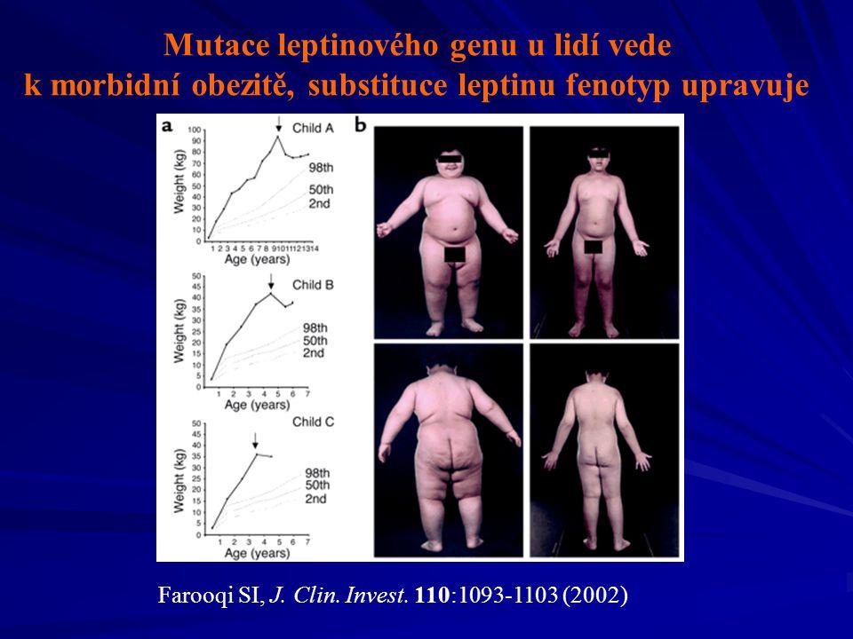 Mutace leptinového genu u lidí vede