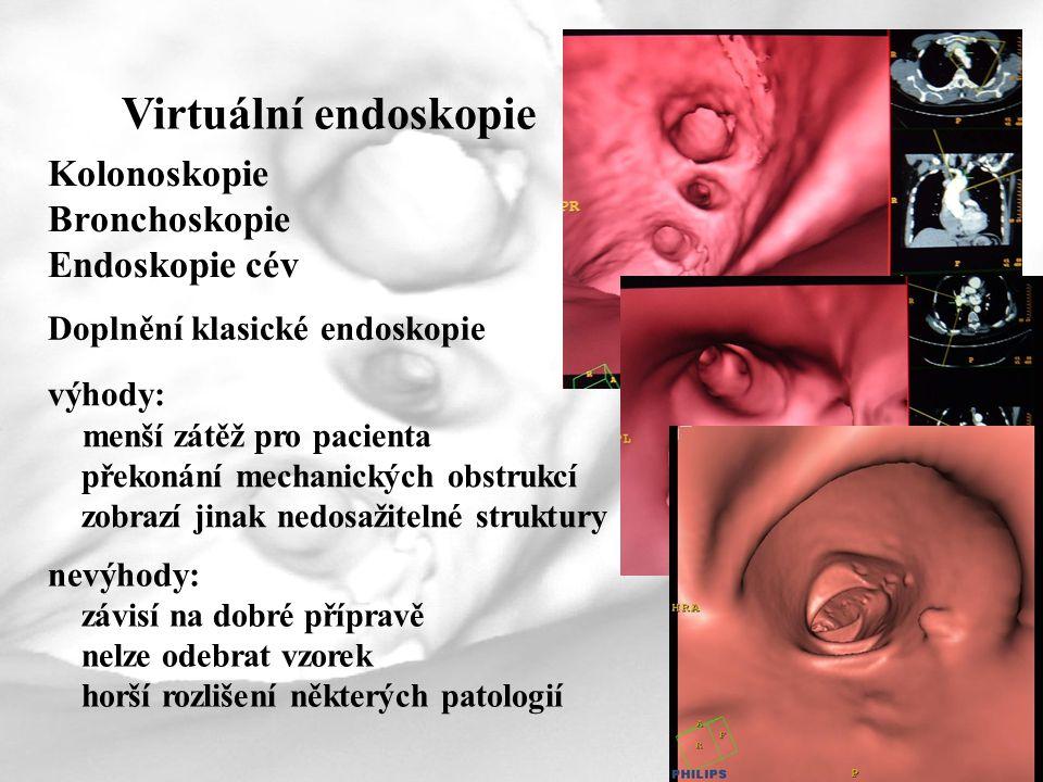 Virtuální endoskopie Kolonoskopie Bronchoskopie Endoskopie cév
