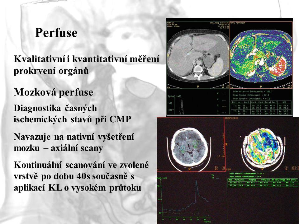 Perfuse Mozková perfuse Kvalitativní i kvantitativní měření