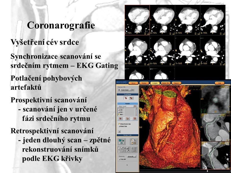 Coronarografie Vyšetření cév srdce Synchronizace scanování se