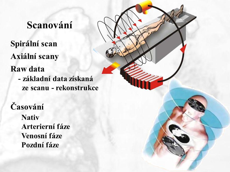 Scanování Spirální scan Axiální scany Raw data Časování