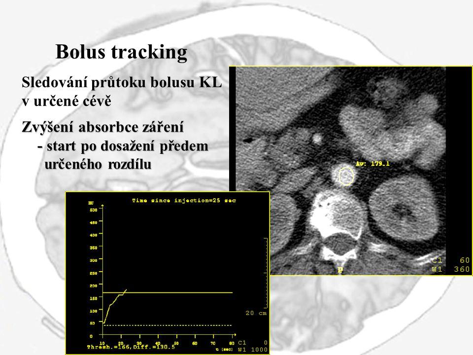 Bolus tracking Sledování průtoku bolusu KL v určené cévě