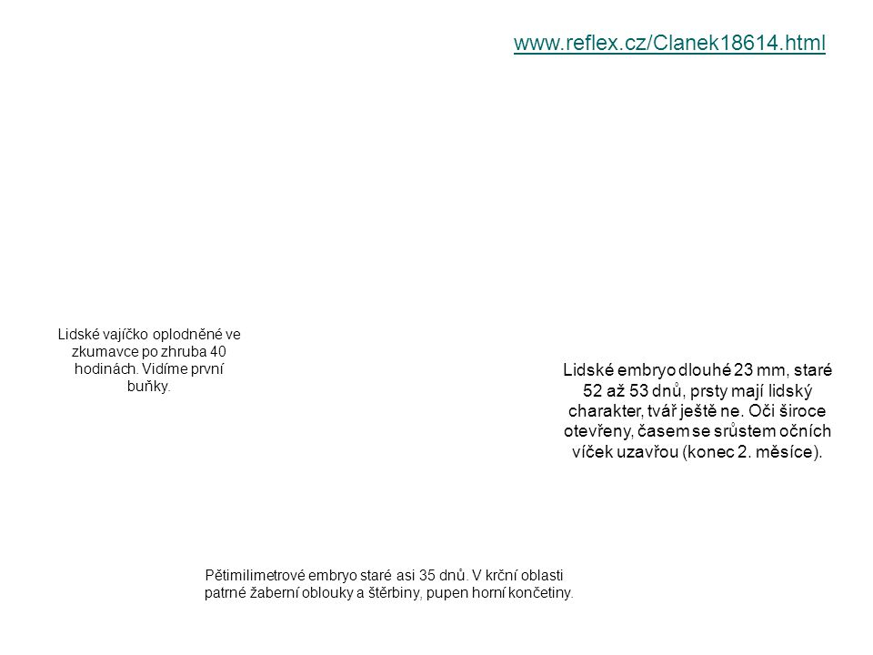 www.reflex.cz/Clanek18614.html Lidské vajíčko oplodněné ve zkumavce po zhruba 40 hodinách. Vidíme první buňky.