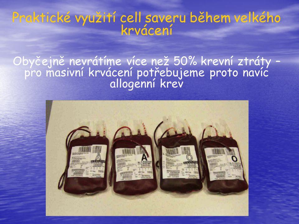 Praktické využití cell saveru během velkého krvácení