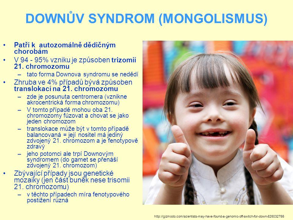 DOWNŮV SYNDROM (MONGOLISMUS)