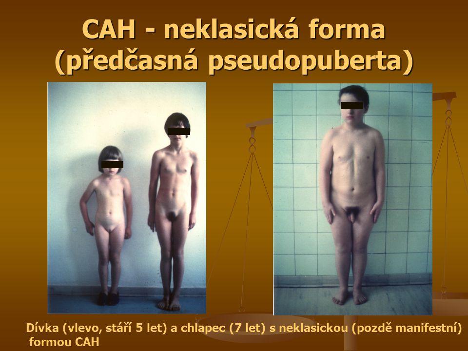 CAH - neklasická forma (předčasná pseudopuberta)