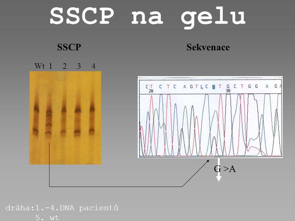 SSCP na gelu SSCP Sekvenace G >A Wt 1 2 3 4 dráha:1.-4.DNA pacientů