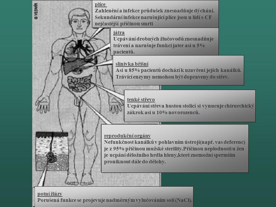 plíce Zahlenění a infekce průdušek znesnadňuje dýchání. Sekundární infekce narušující plíce jsou u lidí s CF.