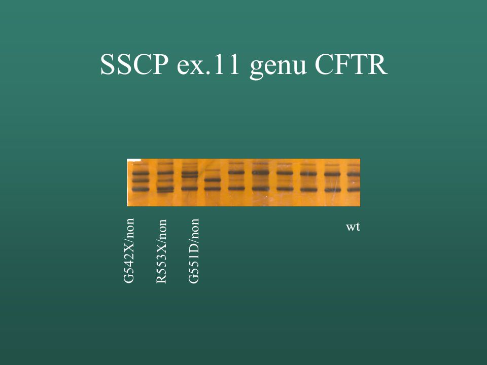 SSCP ex.11 genu CFTR G542X/non R553X/non G551D/non wt