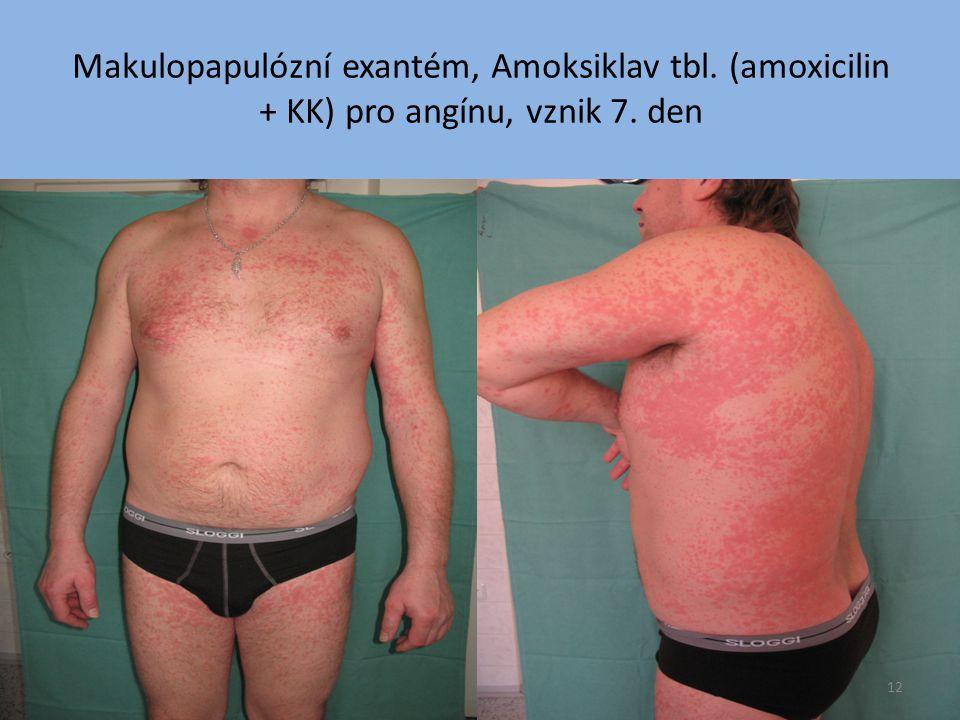 Makulopapulózní exantém, Amoksiklav tbl
