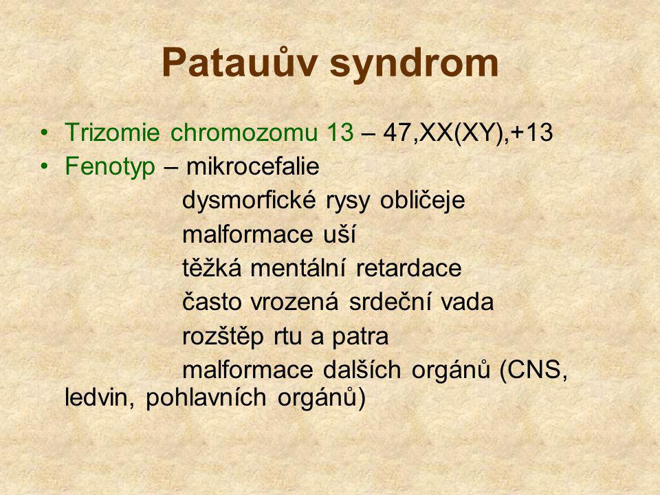 Patauův syndrom Trizomie chromozomu 13 – 47,XX(XY),+13