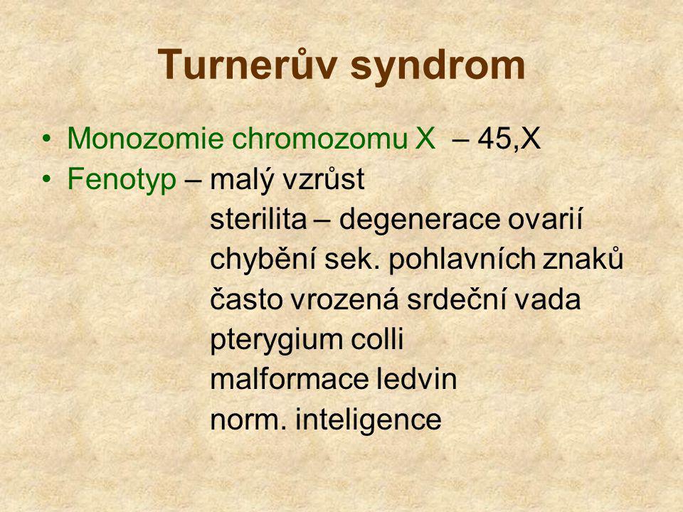 Turnerův syndrom Monozomie chromozomu X – 45,X Fenotyp – malý vzrůst