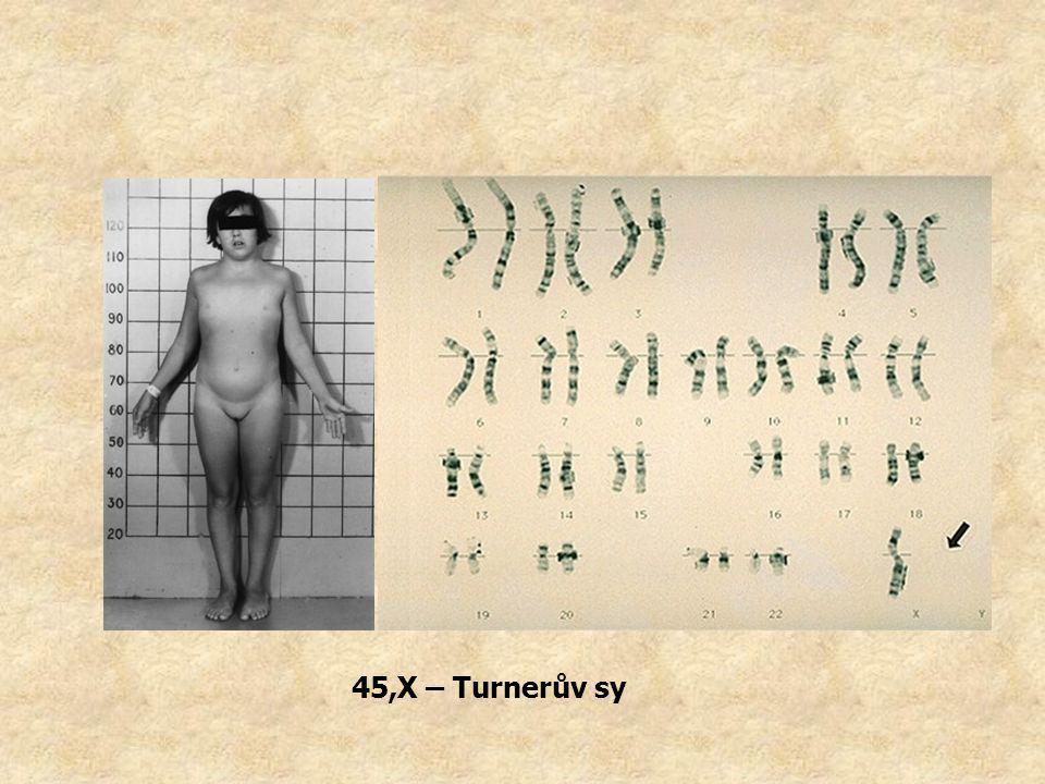 45,X – Turnerův sy
