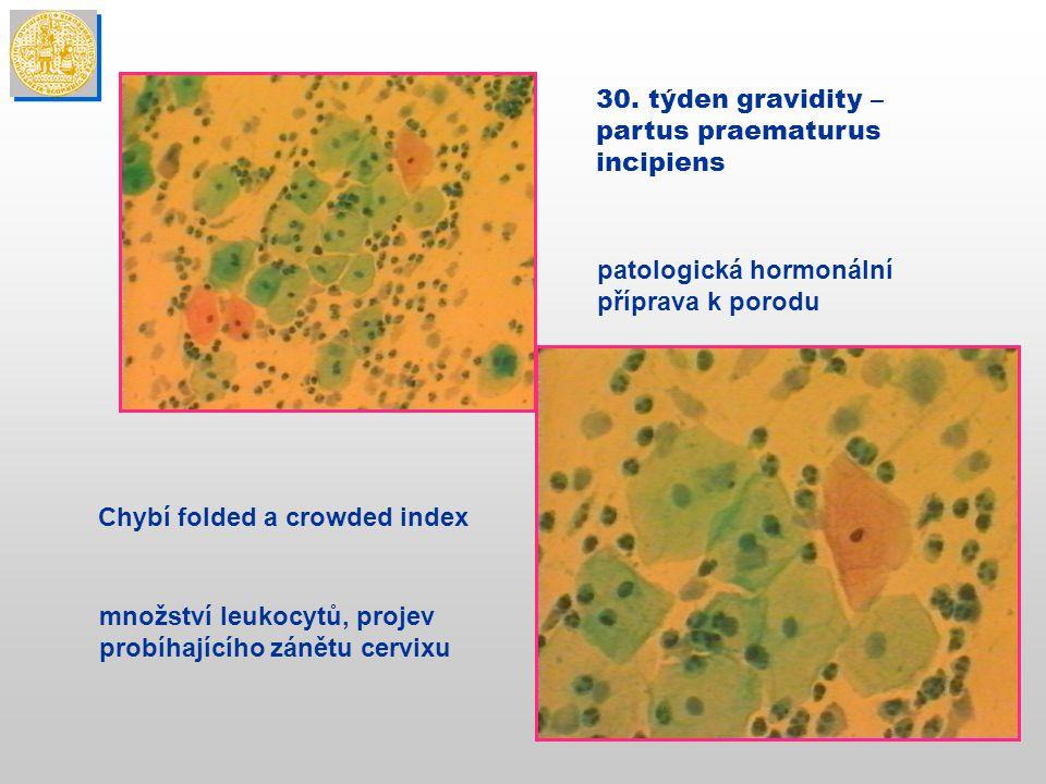 30. týden gravidity – partus praematurus. incipiens. patologická hormonální. příprava k porodu. Chybí folded a crowded index.