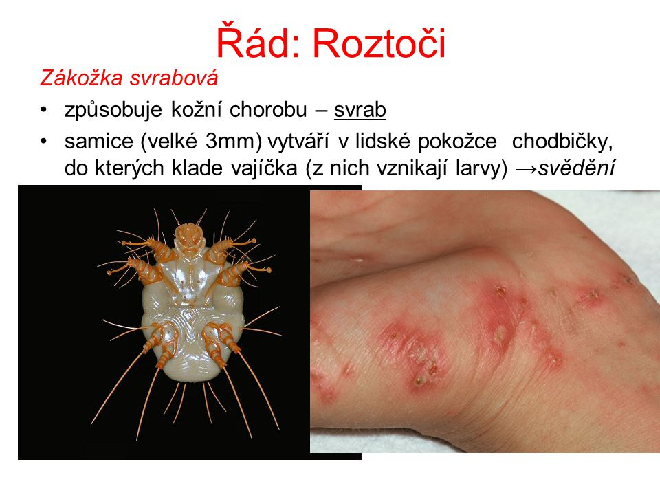 Řád: Roztoči Zákožka svrabová způsobuje kožní chorobu – svrab