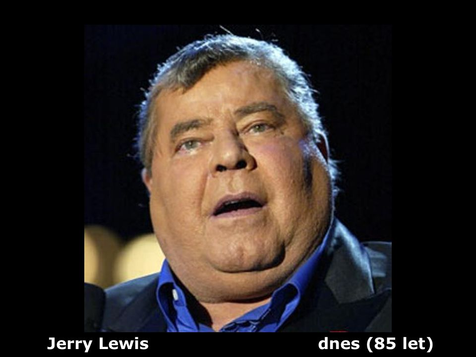 Jerry Lewis dnes (85 let)