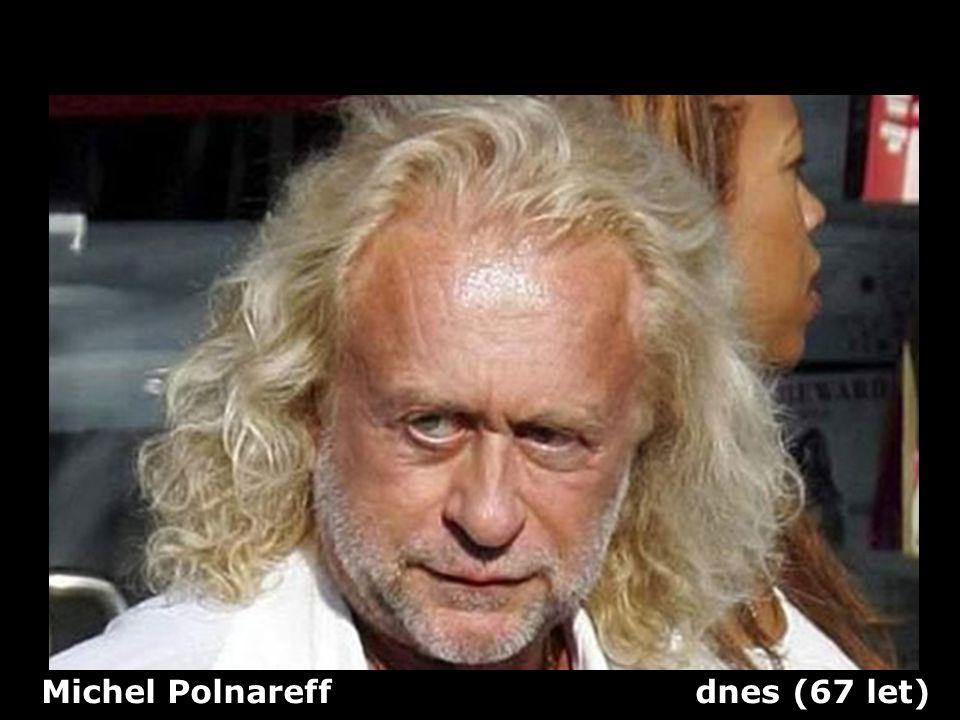 Michel Polnareff dnes (67 let)