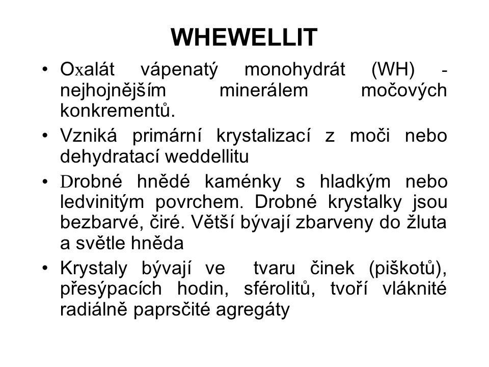 WHEWELLIT Oxalát vápenatý monohydrát (WH) - nejhojnějším minerálem močových konkrementů.