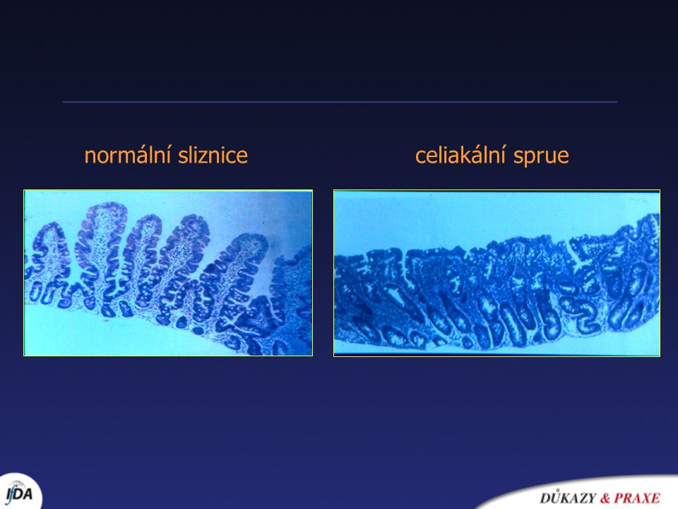 normální sliznice celiakální sprue