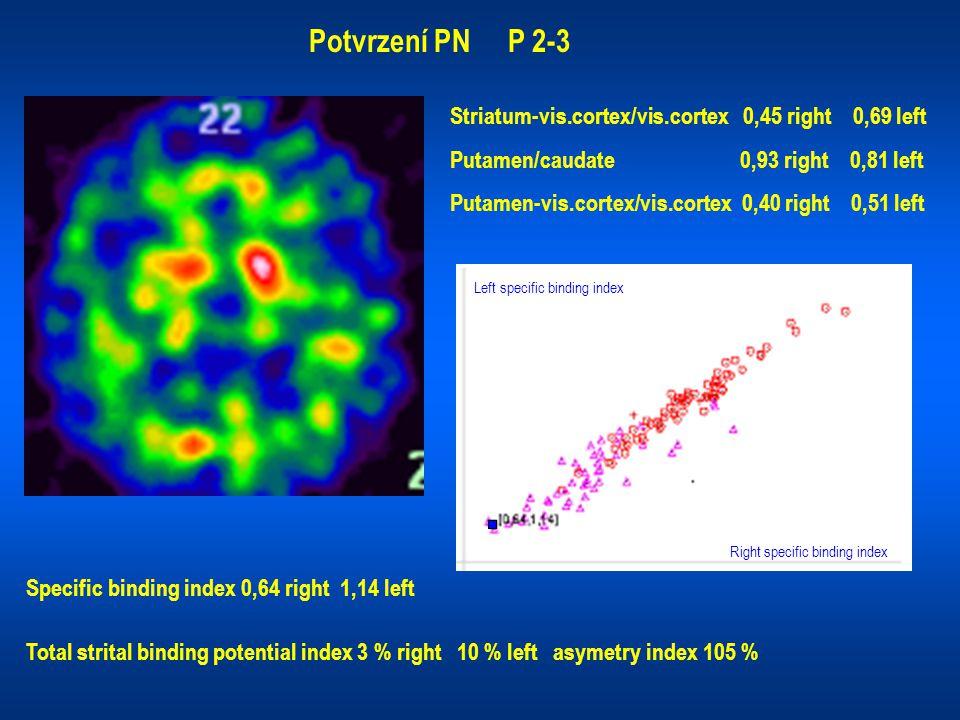 Potvrzení PN P 2-3 Striatum-vis.cortex/vis.cortex 0,45 right 0,69 left