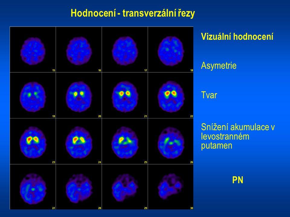 Hodnocení - transverzální řezy