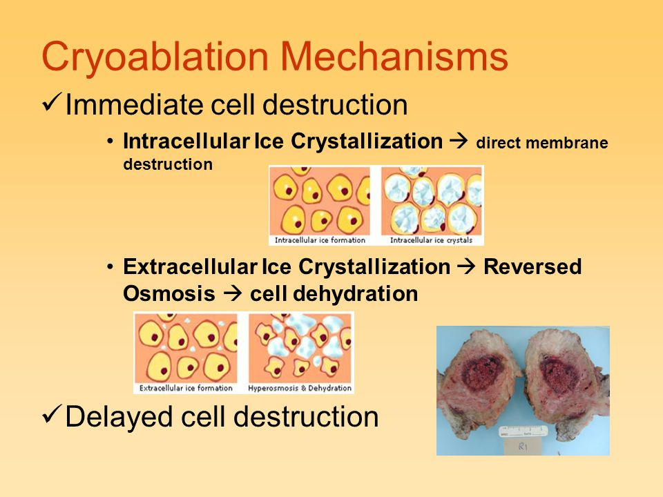 Cryoablation Mechanisms