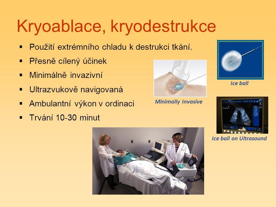 Kryoablace, kryodestrukce