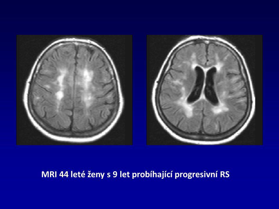 MRI 44 leté ženy s 9 let probíhající progresivní RS