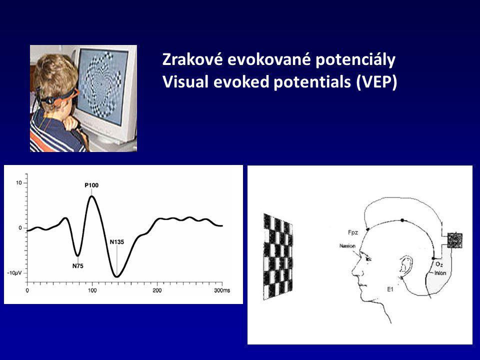 Zrakové evokované potenciály