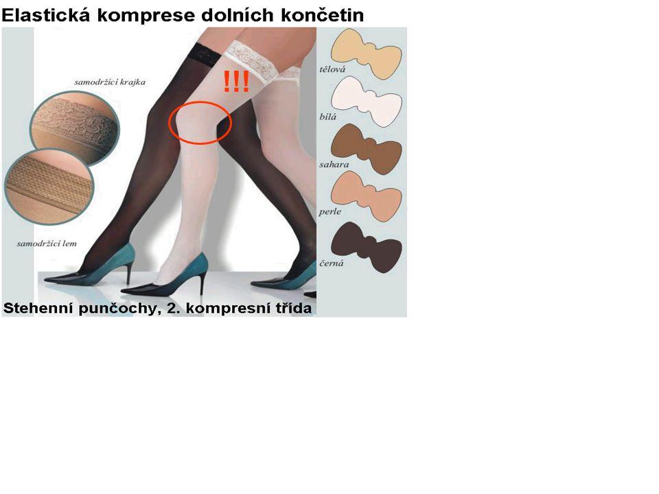 !!! I u krásných nožek, na kterých se fotí podobné marketingové fotografie, může docházet k zásadním chybám ve správném používání elastické komprese.