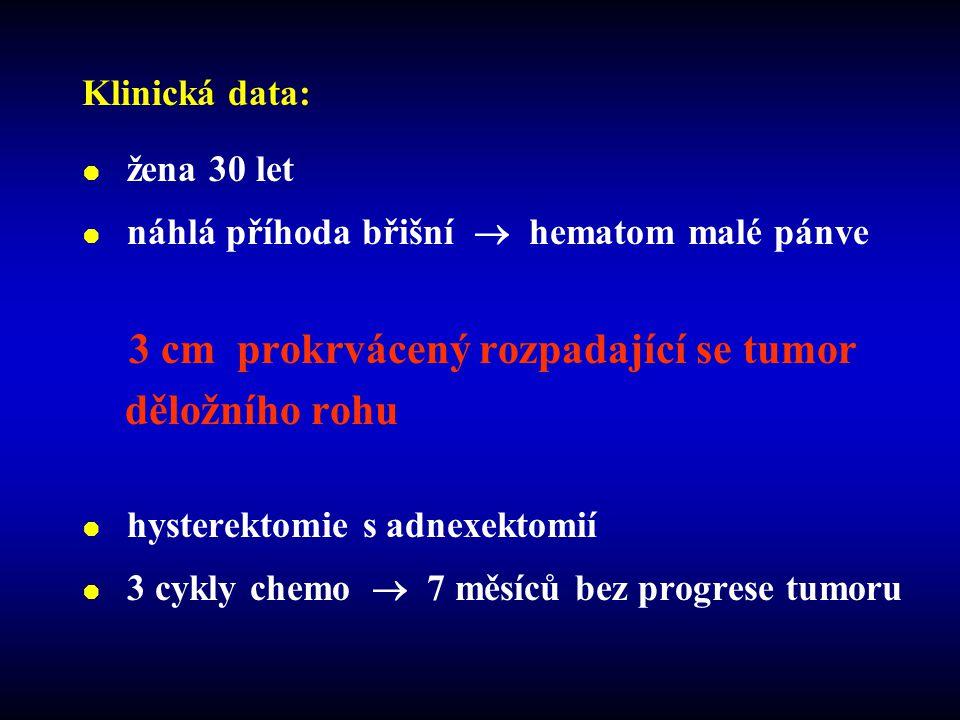 děložního rohu Klinická data: žena 30 let