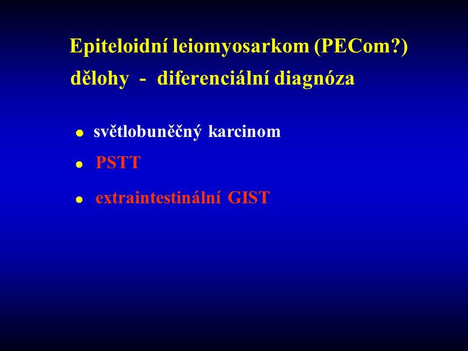 Epiteloidní leiomyosarkom (PECom ) dělohy - diferenciální diagnóza