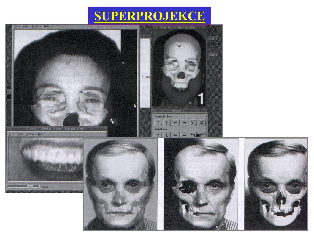 SUPERPROJEKCE Využívá se k identifikaci mrtvol neznámé totožnosti