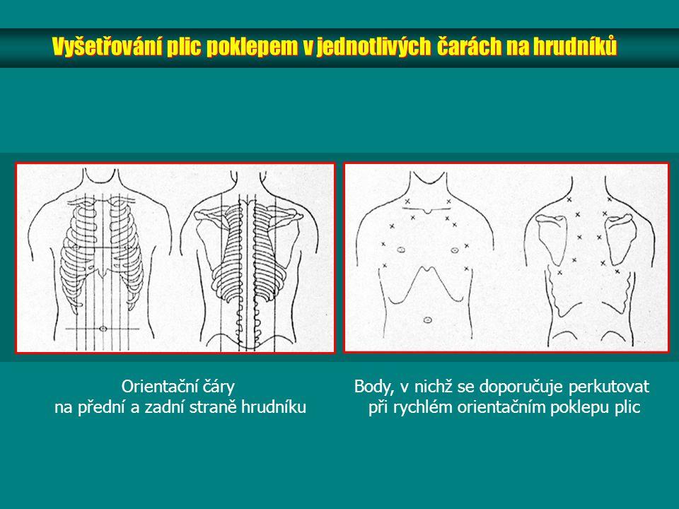 Vyšetřování plic poklepem v jednotlivých čarách na hrudníků