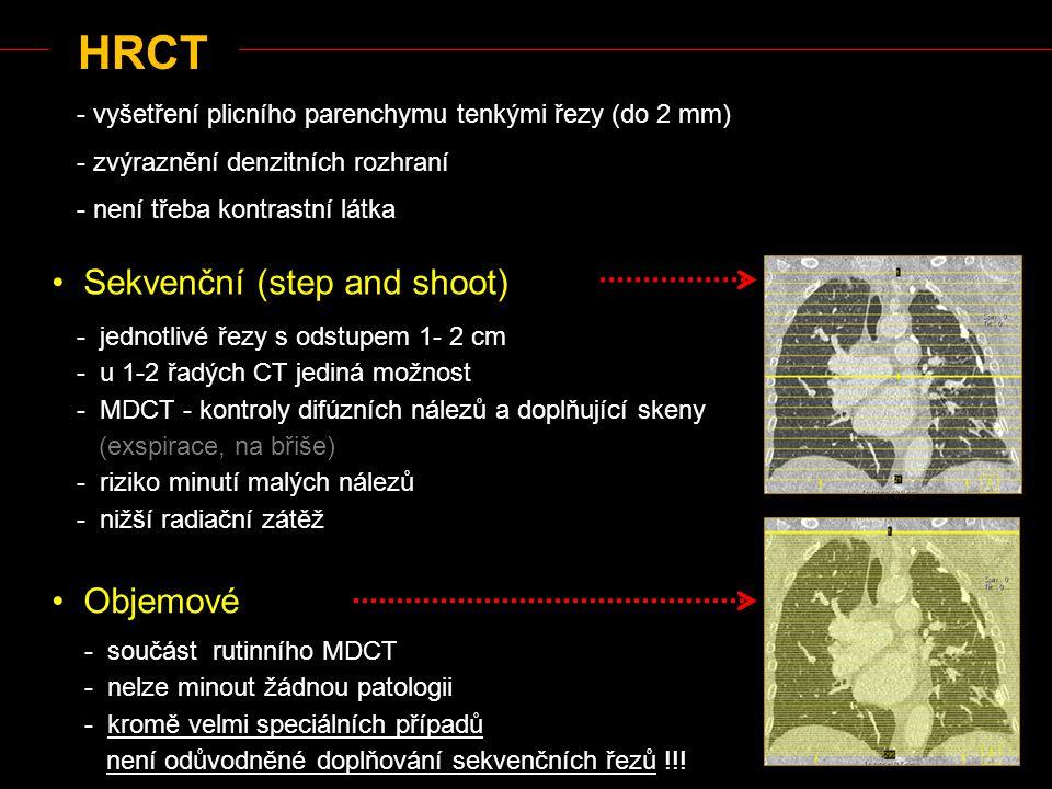 HRCT Sekvenční (step and shoot) Objemové