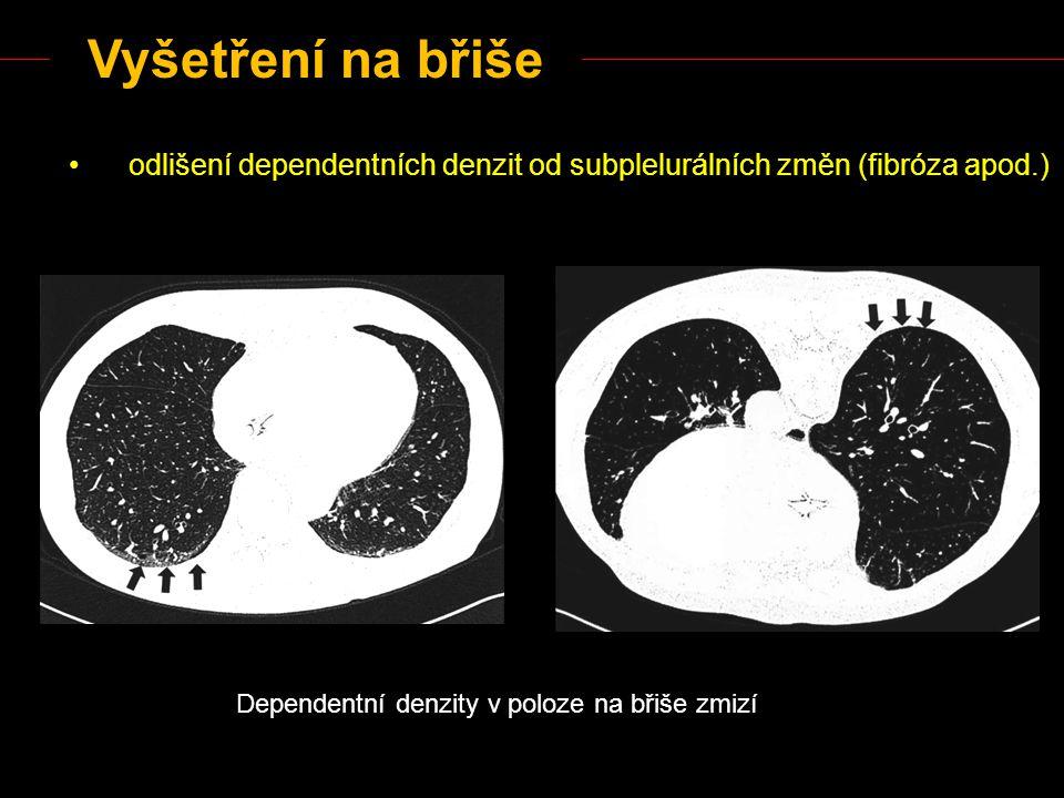 Vyšetření na břiše odlišení dependentních denzit od subplelurálních změn (fibróza apod.) Dependentní denzity v poloze na břiše zmizí.
