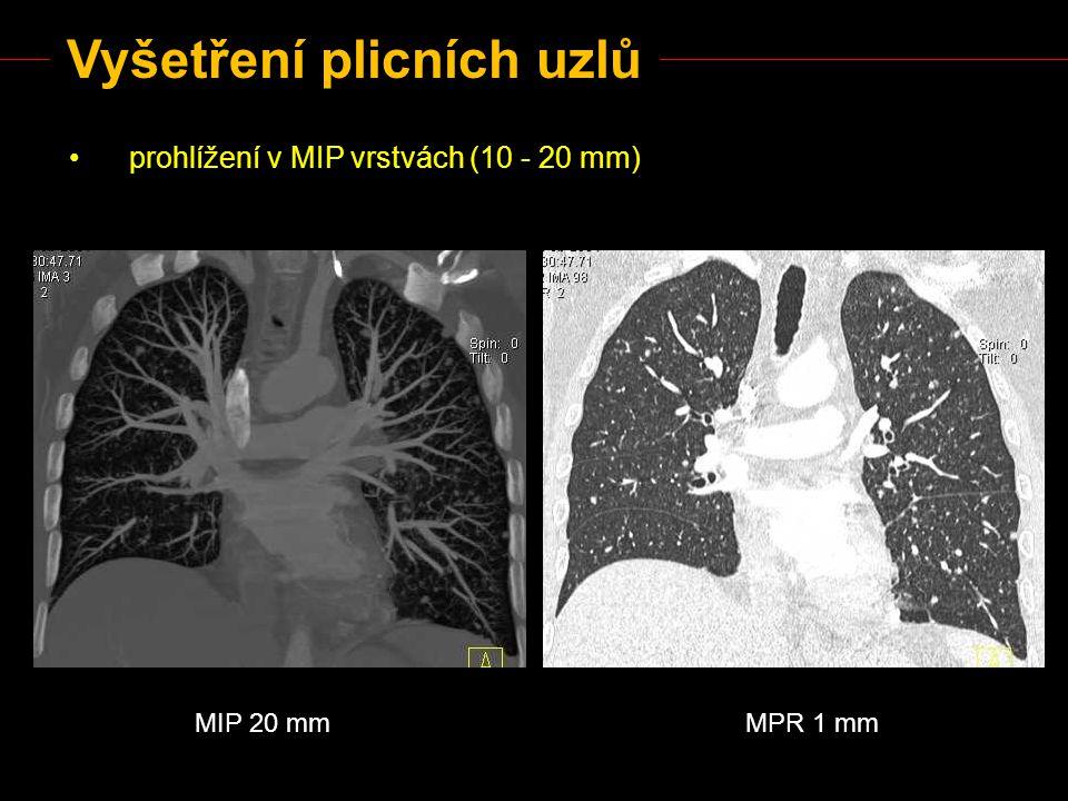 Vyšetření plicních uzlů